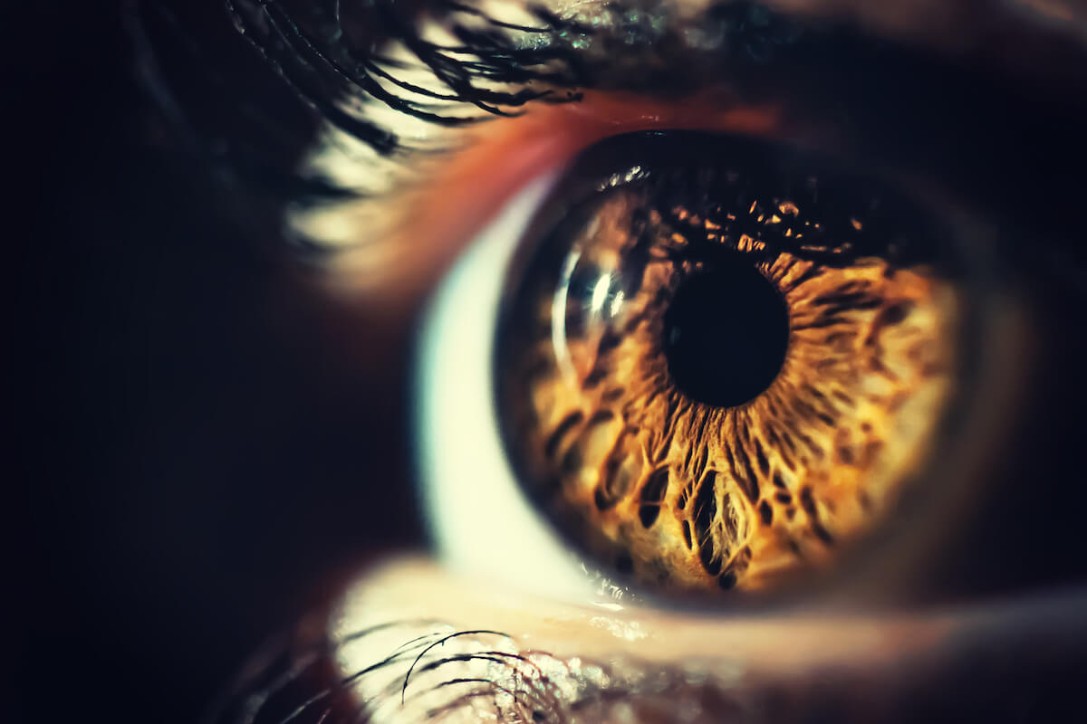 Pigmentvlek in iris