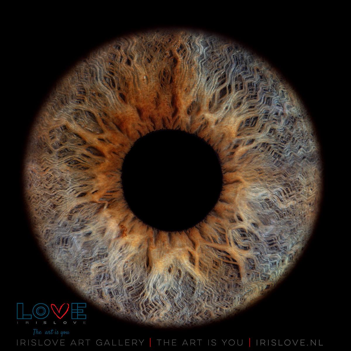 bruine vlekjes iris