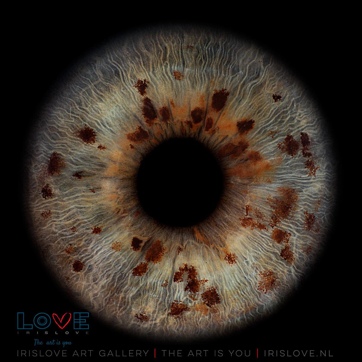 vlekken in je ogen